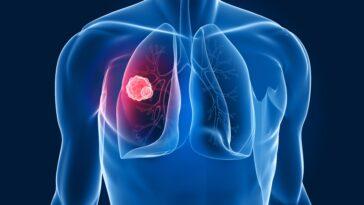 tumore_polmone_pillola