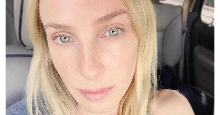 Taylor Muhl, la modella con la pelle di due colori