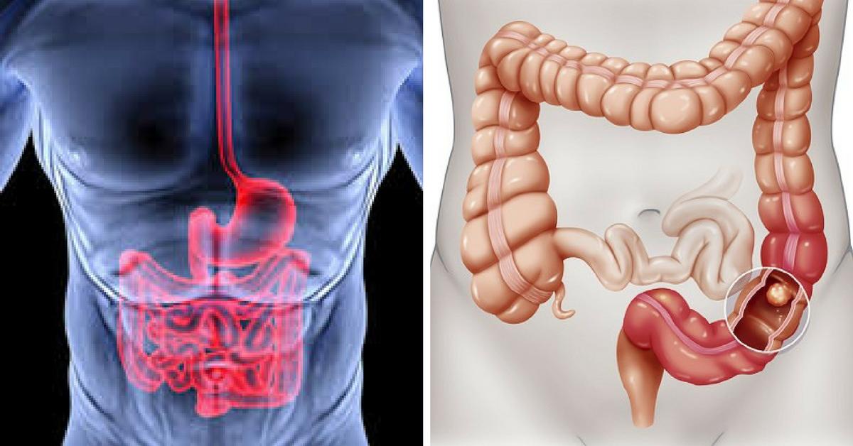 cancro-colon