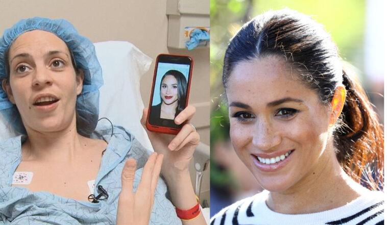 Donna spende 20mila euro in chirurgia estetica per assomigliare a Meghan Markle