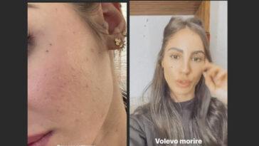 Giulia De Lellis e l'acne