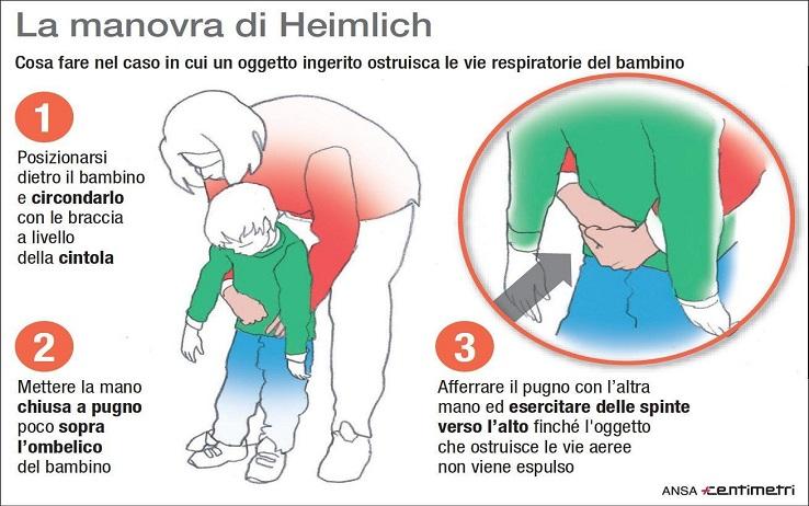 La manovra di Heimlich